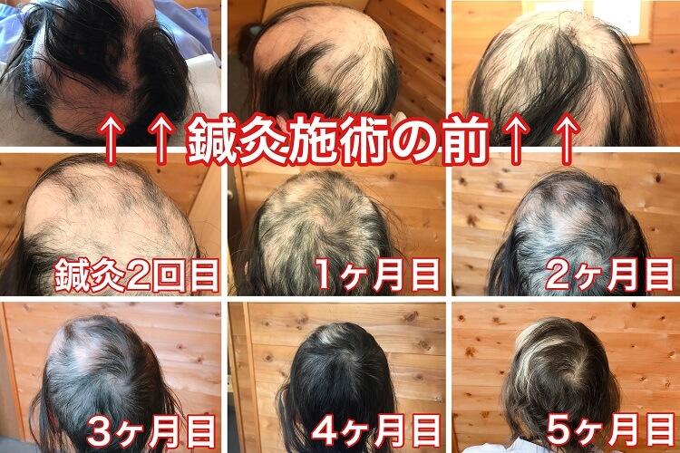 多発性脱毛症の鍼灸施術による変化の様子