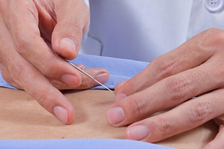 使い捨てではない鍼灸の針とは